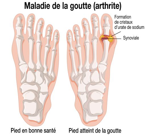 Source photo : http://www.doctissimo.fr/html/dossiers/rhumatismes/articles/12866-goutte.htm